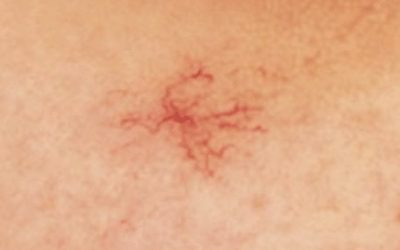 What is Spider Naevus and How to Treat it?