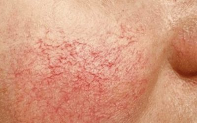 What is Telangiectasis?