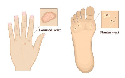 What are the different types of warts?