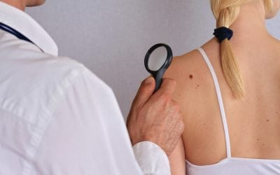Some Facts About Skin Tags